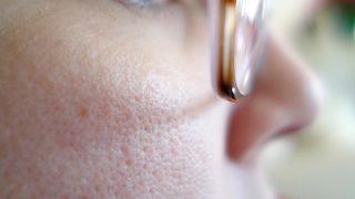 夏は毛穴の開きが目立つ季節!収れん化粧水を使うメリットとデメリット