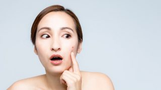 【乾燥肌×ニキビ】考えられる3大原因と改善方法を紹介